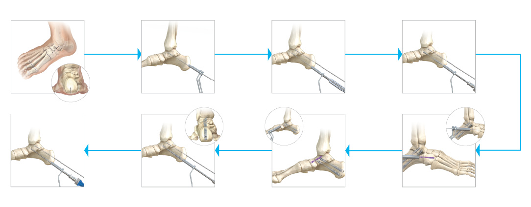 Calcaneal Osteotomy SUG